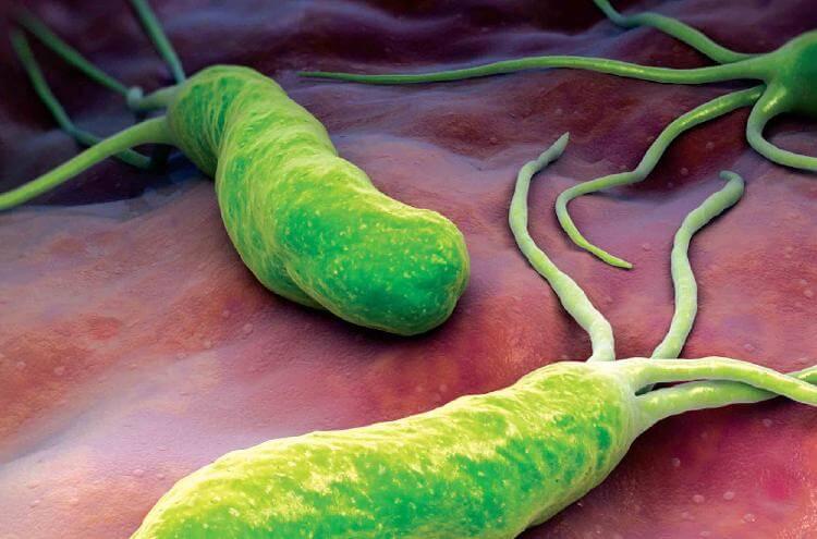 Избавляемся навсегда от бактерий, которые являются причиной изжоги, язвы, вздутия живота