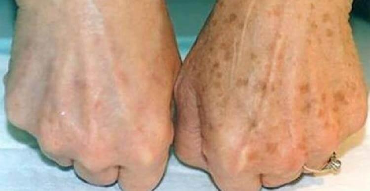 Эффективный метод избавления от коричневых пятен на коже от опытного дерматолога