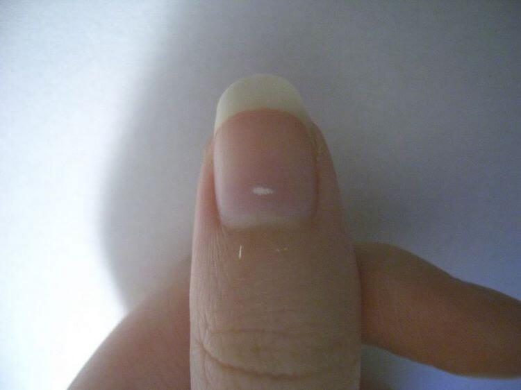 7 важных вещей о здоровье, о которых смогут рассказать ваши ногти: просто изучите свои руки